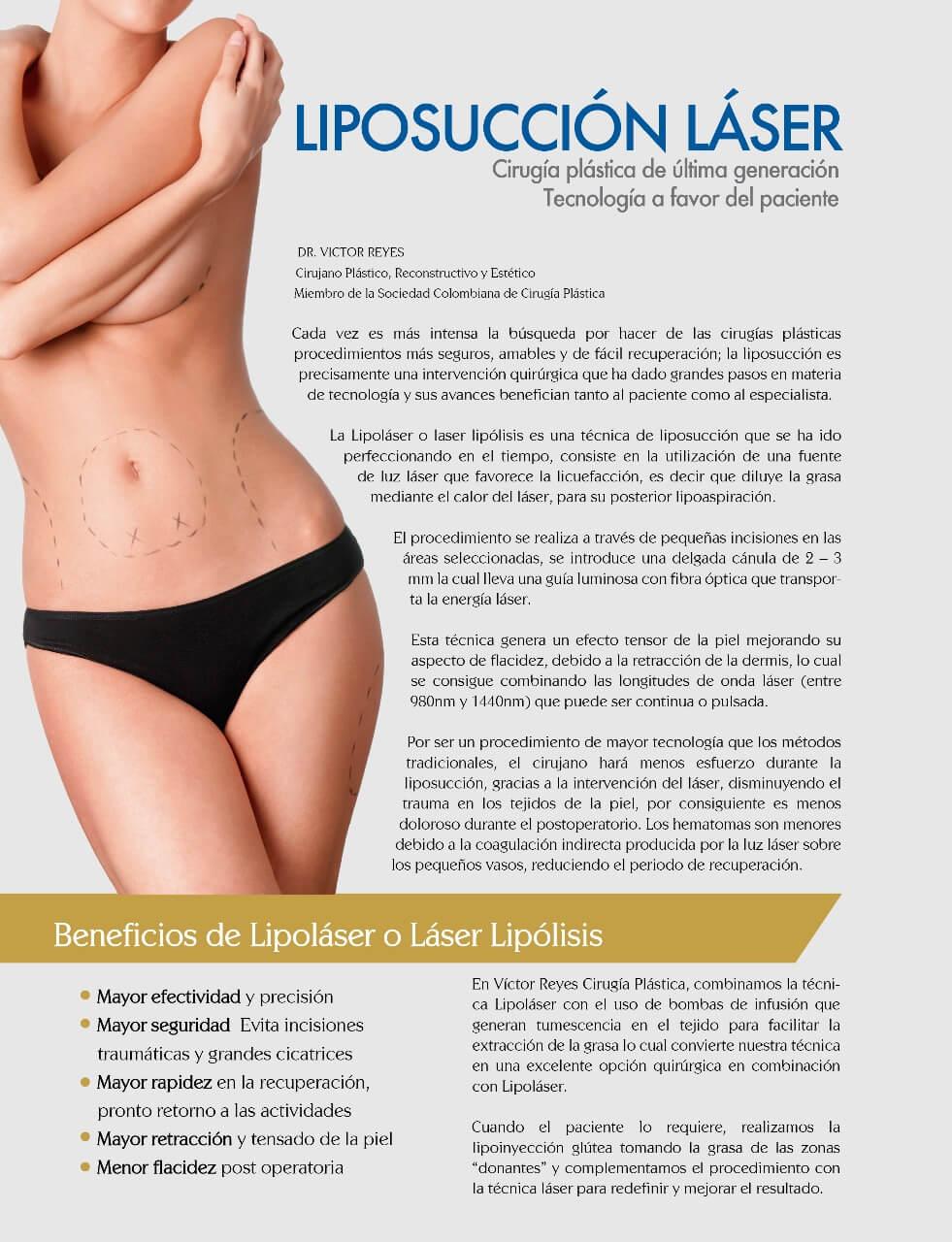 liposuccion laser