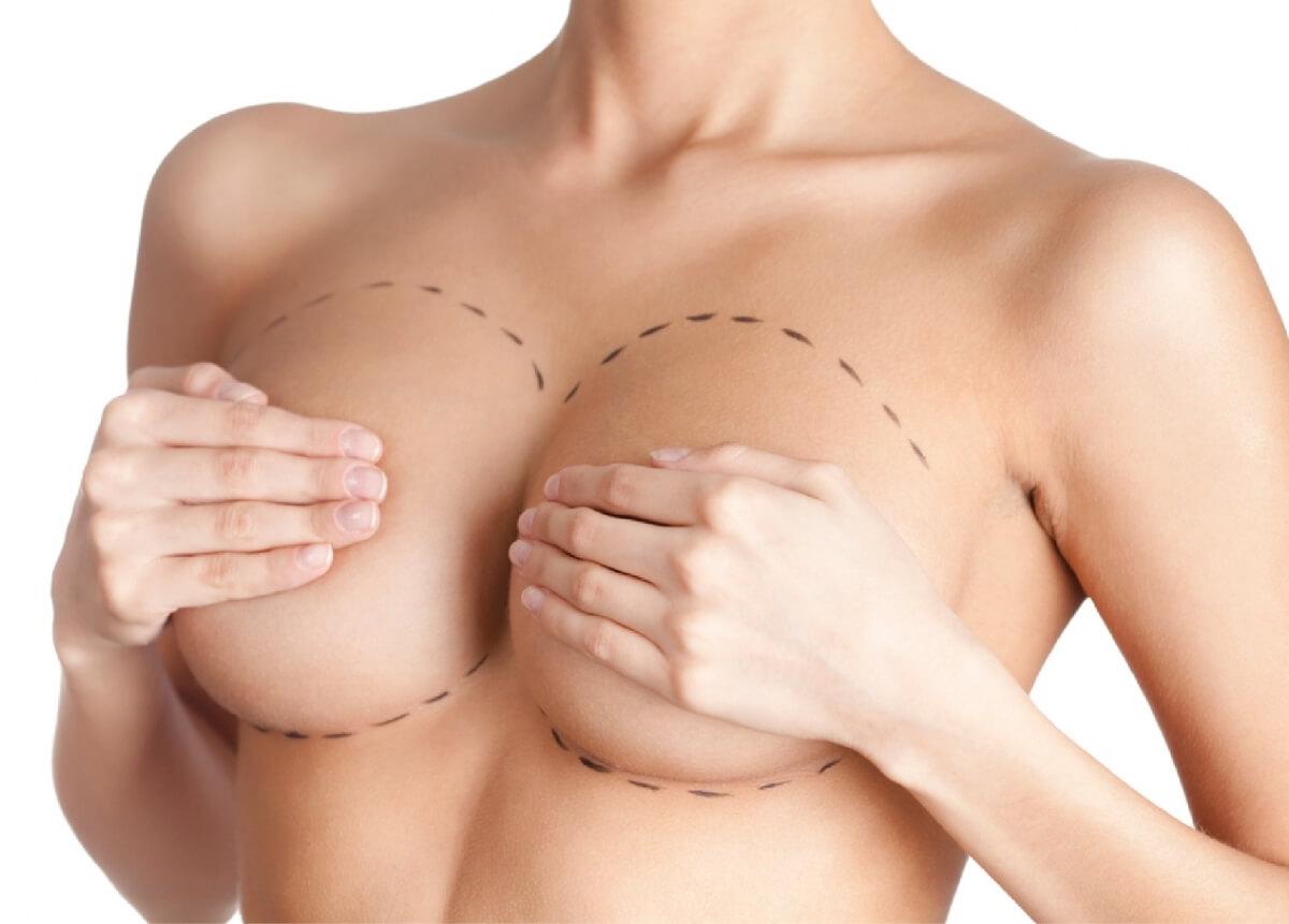 Mamoplastia en Pereira y Armenia - Reducción y levantamiento de senos