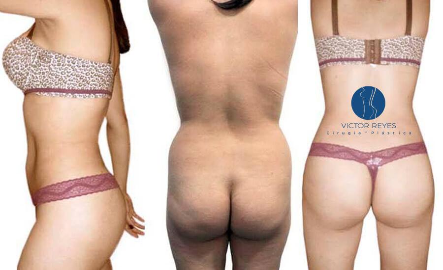 Vibrolipo: evolución de la liposucción o lipoaspiración a favor del paciente