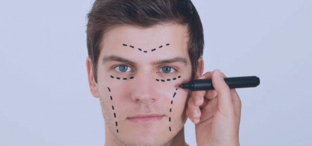 ♦ ¿Cómo es la clasificación de la cirugía plástica facial?