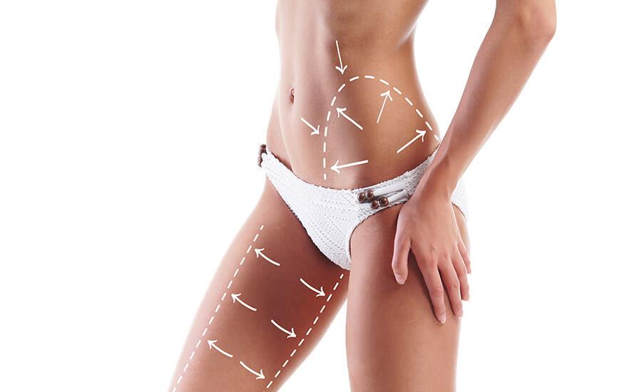 ✅ 4 mitos acerca de la liposucción que debes conocer. ¡Cita en Pereira!