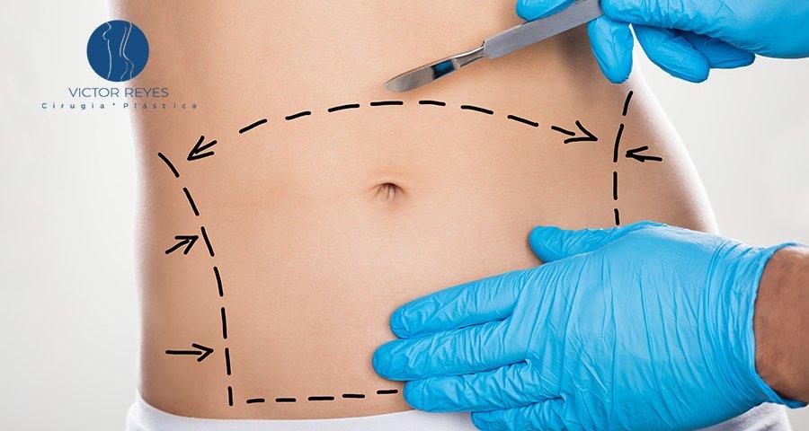 Cirugías a realizar luego de una pérdida de peso muy grande
