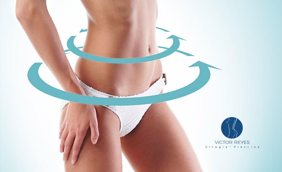 ¿Cómo mantener la figura después de una lipoescultura (liposucción)?