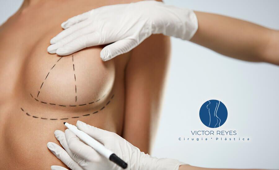 ¡Ahora en Pereira! Mejora tu entorno corporal con una cirugía de aumento de senos