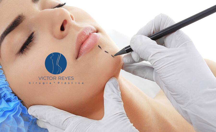 Todo lo que debes saber sobre Implantes de Mentón (Mentoplastia)
