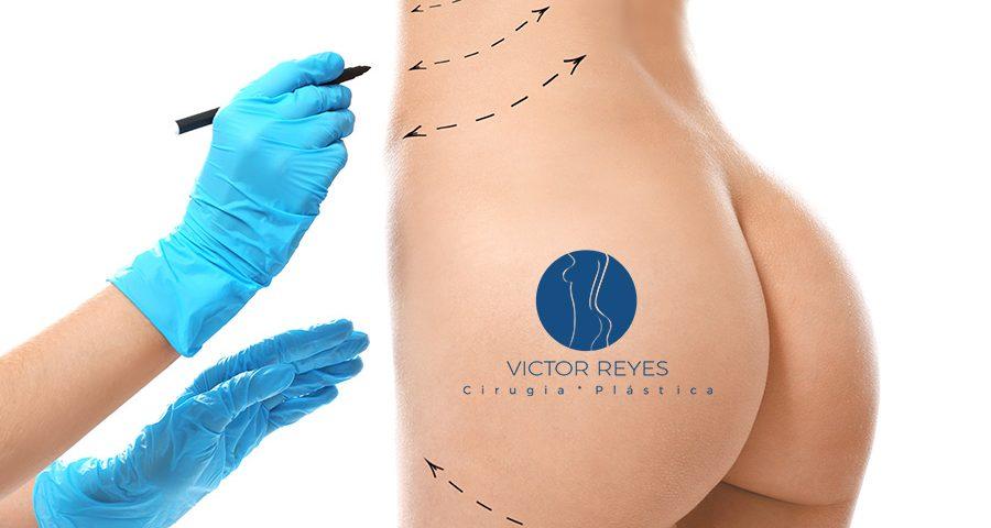 Tamaño de implantes glúteos y técnicas de Gluteoplastia en Pereira
