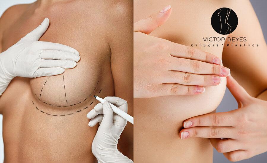 Cirugía plástica de senos: Diferencias entre Mamoplastia de aumento y Mastopexia