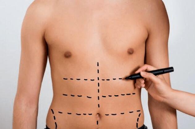Procedimientos estéticos no quirúrgicos en Pereira