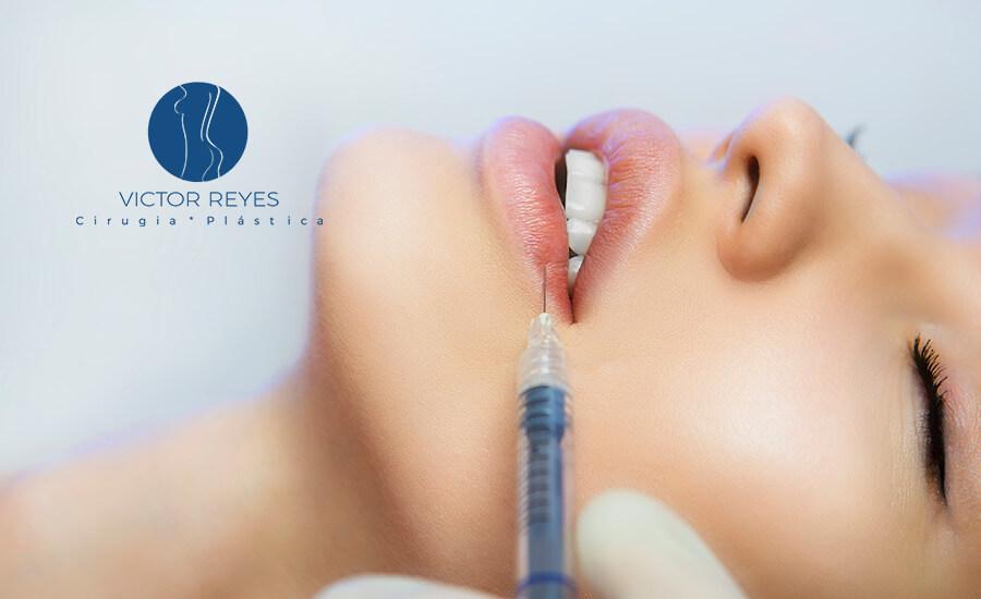 ✨ 6 errores que debes evitar tras aplicarte ácido hialurónico en los labios