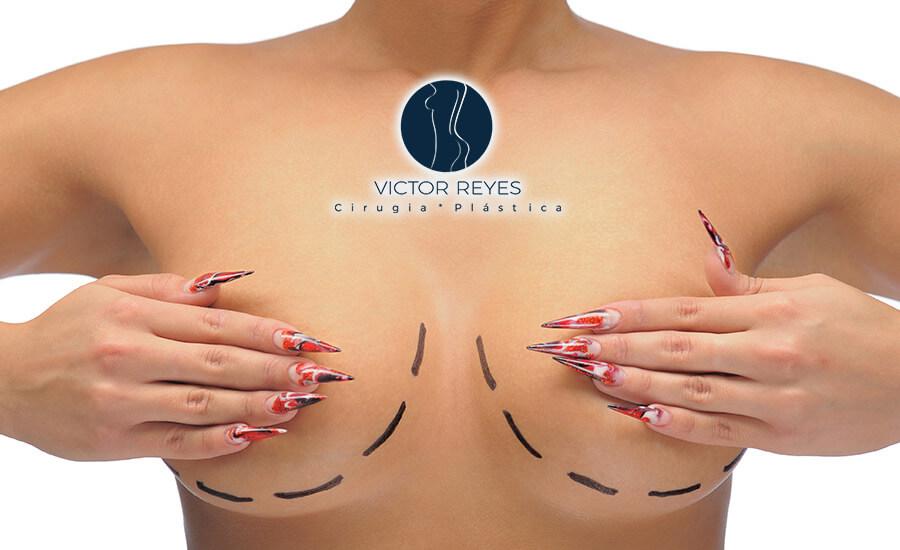 ⭐️⭐️⭐️⭐️⭐️ 3 Técnicas de reducción de senos que debes conocer