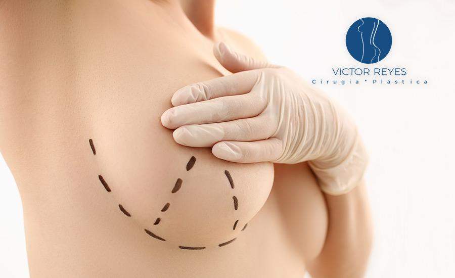 ✅ Mastopexia o levantamiento de senos: ¿con o sin implantes?