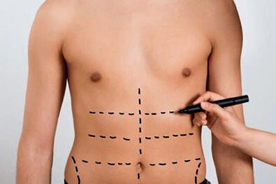 Procedimientos estéticos no quirúrgicos en Pereira - Dr. Víctor Reyes
