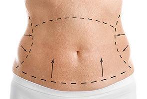 Cirugía de abdominoplastia en Pereira - Dr. Víctor Reyes