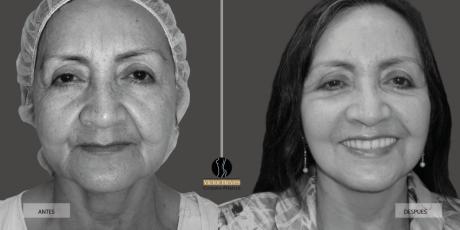 lipoescultura-facial